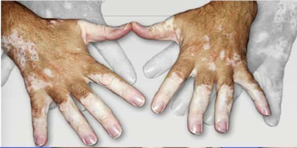 أعراض مرض البرص